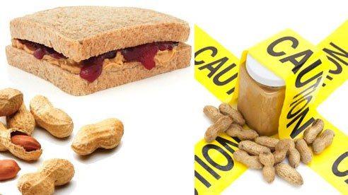 peanuts_allergy-7d8940dd8e1772a8c09d5aefd9726cbb